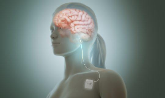 Body Movin': Vagus Nerve
